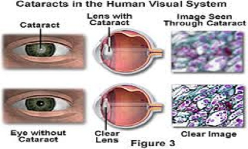 Eye Defects And Corrections in Humans; Reasons, Effect and Solution