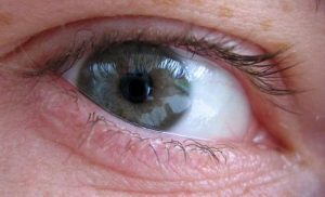 10 Reasons why you should do your Eye checkup