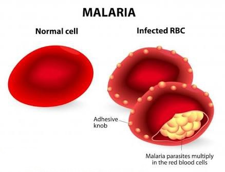 Effects of Genotypes (AA,AS,SS) To Malaria Proneness and Vulnerability