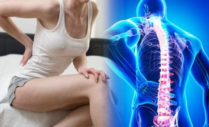 How to Stop Your Back Pain